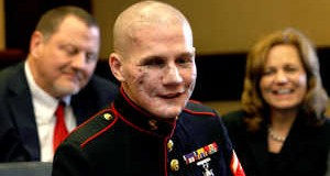 marine-jumped-on-grenade-now-inspiring-the-world
