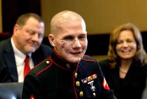 marine-jumped-on-grenade-now-inspiring-the-world